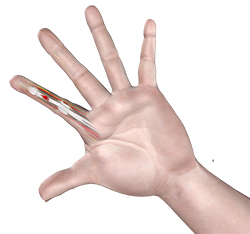flexor tendon injuries adelaide hand injuries treatment northern